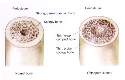 Hueso sano y afectado por osteoporosis. La transmutación del silicio en calcio y su posterior asimilación, jugarían un papel clave.