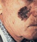 Melanoma de piel.