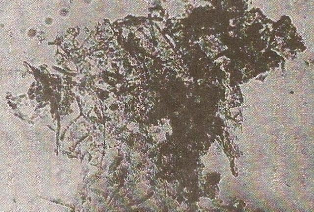 Copos de células con biones en agua de césped. x150. Ref; Heretic's Notebook. Pag 91.