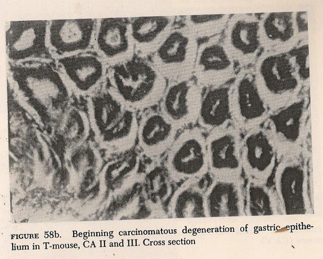 """Bacilos-T presentes en el carcinoma del epitelio gástrico de un ratón contaminado. Fig 58b de """"La BIopatía del Cancer""""."""